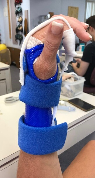 Splint-Picture hand in hand rehabilitation